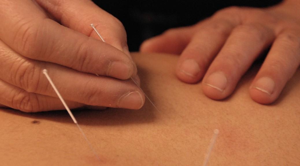 Acupunctuur M.H. Liem-Lim